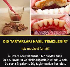 Walnussschale für Zahnstein Walnut shell for tartar, # for shell Oral Health, Dental Health, Health And Wellness, Health Care, Health Fitness, Healthy Beauty, Health And Beauty, Healthy Habits, Healthy Life