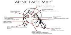 What your Acne reveals about your health - acne face map