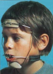 Braces and headgear...my teeth still hurt thinking about wearing ...