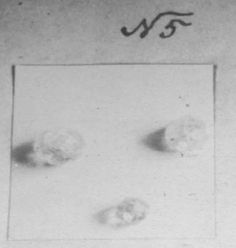 Damaged diamonds belonging to Alix or daughters - discovered by Sokolov at mine.