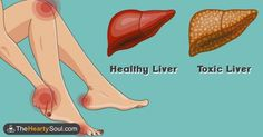 Image of 16 warning signs your liver is overloaded with toxins that are making you fat