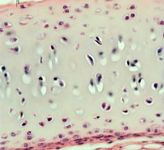 chondrocytes (chondr = cartilage) are found within lacunar (lacuna = space; singular = lacuna) has a firm but flexible ground substance that looks glassy and smooth Hyaline Cartilage, Histology Slides, General Biology, Human Tissue, Cells And Tissues, Skeletal System, Human Anatomy And Physiology, Hand Therapy, Anatomy Study