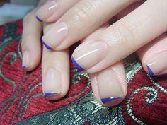 Nude n french tip nails May Nails, Love Nails, Pretty Nails, Hair And Nails, Toenail Fungus Laser Treatment, Nail Pops, Nail Remover, Minimalist Nails, Garra