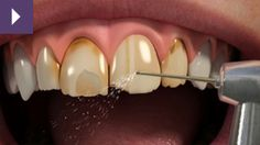Porcelain Veneers At Fiveways, we have a procedure known as a veneer. A porcelain veneer is a very thin, tooth-coloured piece of porcelain (like a false finger nail) that is bonded on top of your own tooth. Based on your needs, we can adjust the shape of your veneers to make your teeth overall look longer and or closer together.