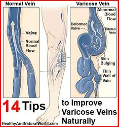 14 Tips to Improve Varicose Veins Naturally