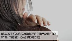 How to remove dandruff permanently? Besides commercial anti dandruff, there are a number of home remedies for dandruff that can help as well. Dry Scalp Remedy, Home Remedies For Dandruff, Itchy Scalp, Natural Home Remedies, Herbal Remedies, How To Remove Dandruff, Getting Rid Of Dandruff, Baking Soda Benefits, Baking Soda Uses