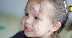 Concussion or head injury | BabyCenter