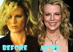 Kim Basinger Plastic Surgery Before and After Pictures