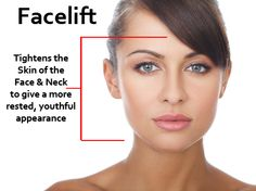 With Cadillac facial rejuvenation think, that