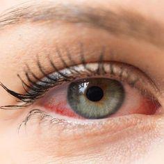 Remediu natural pentru hipertensiune arteriala si pentru desfundarea arterelor Eye Cataract, Dry Eye Symptoms, Warm Compress, Gentle Baby, Weather Activities, Baby Shampoo, Light Sensitivity, Eye Strain, Eyes
