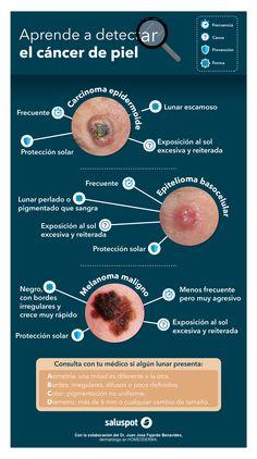 Infografía sobre el cáncer de piel, en colaboración con el Dr. Juan José Fajardo Benavides.