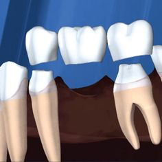 IF YOU'RE MISSING TEETH, daily activities like smiling and chewing can be extremely difficult. Bridges (whether fixed or removable) might be just the solution!