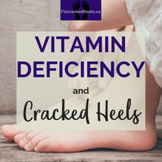 What can you learn about Vitamin deficiency and cracked heels? Read more to help cure your cracked heels today! Cracked Feet Remedies, Foot Remedies, Dry Skin Remedies, Cracked Heel Relief, Dry Cracked Heels, Sugar Foot Scrubs, Heel Fissures, Dry Heels, Vitamin Deficiency