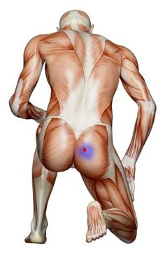 Locating and Treating Trigger Points (knots) in the Piriformis Muscle - Natural Sciatic Relief