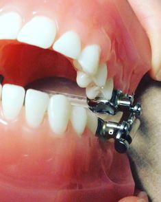 67 Best Before And After Braces Images After Braces