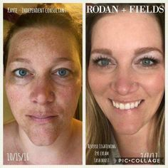 Talk about REVERSING the signs of aging! That's exactly what Kayte has done!! And check out her lovely lashes! She did it with R+F's #REVERSE regimen, Multi-Function Eye Cream, and Lash Boost! If you're ready to reverse the signs of aging...message, text or call me!! Special offer on regimen + Lash Boost @ 20% off plus another 10% off as a Preferred Customer! Huge Savings!! Get it while you can! #RFLashBoost
