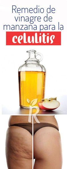 Como usar vinagre de manzana para eliminar celulitis, piel de naranja, remedios celulitis infecciosa, quitar celulitis piernas, como eliminar la celulitis gluteos, #rem101 #celulitis tratamientos celulitis, combatir celulitis en el abdomen Natural Remedies, Health Tips, Health Fitness, Hair Beauty, Healthy Recipes, Food, Skinny, Beautiful, Health Remedies