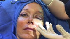 Awake in-office upper eyelid lift by Dr. Kulak at The Naderi Center