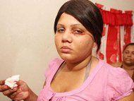 Duh, Kena Penyakit Langka, Wanita Ini Menangis Darah!