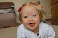 misconceptions of Down syndrome