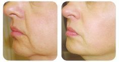 2 Ingrediente diga adiós a las arrugas y flacidez de la piel facial con esta sencilla receta. Es sorprendente.! - Con mi Salud y Mas