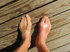 Gout is the result of too much uric acid in the body. Those with gout do not properly eliminate uric acid from the body. Candida can also increase levels of Home Remedies For Gout, Gout Remedies, Homeopathic Remedies, Natural Cure For Arthritis, How To Cure Gout, What Is Gout, Knee Pain Relief, Gout Relief, Knee Arthritis