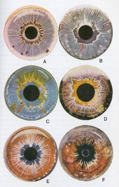 """""""Bromids show in the iris as white or yellowish white discolorations. They appear in the form of a crescent in the upper regions of the iris, indicating that the drug exhibits a special affinity for the brain and sympathetic nervous system. (Color plate, a-e, p. 116.) The more strongly marked this sign in the iris the more symptoms of chronic bromism will be exhibited by the patient. A very noticeable symptom of chronic bromid poisoning is a peculiar acne form rash."""""""