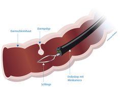 Durch eine Darmspiegelung lassen sich verschiedene Krankheiten am Dickdarm (Colon) sowie am Ende des Dünndarms (terminales Ileum) erkennen. Die Koloskopie gilt als die derzeit zuverlässigste Methode, um Darmkrebs frühzeitig zu erkennen. Zudem kann der Arzt während der Untersuchung Krebsvorstufen (Polypen) entfernen und damit das Risiko für die Entstehung eines Kolonkarzinoms drastisch senken. (Quelle: Ortenau Klinikum)