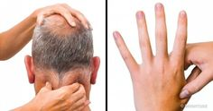 14 Pressure Points to Get Rid of Annoying Aches All Over Your Body Acupuncture has been used in China for thousands of years, and selecting the right points can Acupuncture For Anxiety, Acupuncture For Weight Loss, Acupressure Treatment, Acupressure Points, Sciatic Nerve, Nerve Pain, Leg Pain, Back Pain, Hand Pressure Points