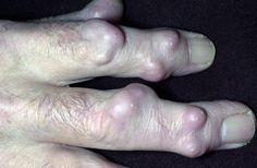 scleroderma | scleroderma 2 sclero 3 scleroderma 4 scleroderma 5 scleroderma 6