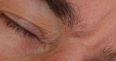 Seborrhea Dermatitis – Gluten Free Works: HEALTH GUIDE