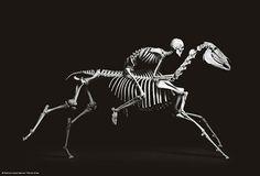 Love bones! True ortho nurse!