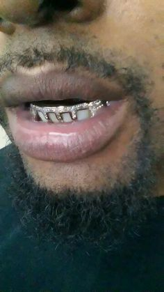 Custom Diamond and Gold Grillz.. Bridge bar with gap fillers... Www.chigrillz.com make an appointment today (312)925-5217 Shai