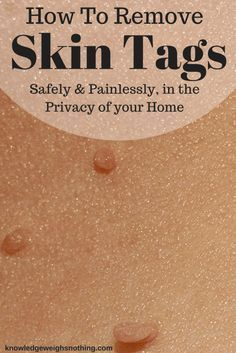 Remove skin tags at home with these 11 home remedies for skin tags.