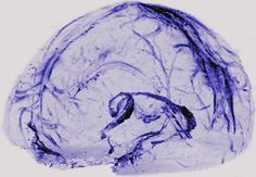 "Image of a brain scan - froom ""NIH Discovers Drain Pipes"""