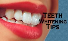 Natural remedies for yellow teeth