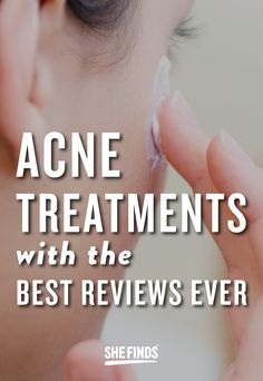 Acne Treatments With The Best Reviews Ever