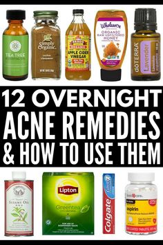 How to Get Rid of Acne Overnight Want to know how to get rid of pimples and blemishes on your forehead, face, chest, and back fast (and naturally)? While these acne products and acne remedies won't get rid of your bad skin instantly, these at home DIY i Doterra Acne, Aloe Vera, Mac Cosmetics, Overnight Acne Remedies, Overnight Acne Treatment, Clear Acne Overnight, Best Acne Spot Treatment, Cystic Acne Treatment, Natural Acne Treatment