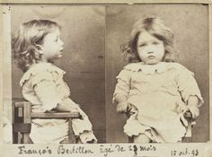 Mugshot of François Bertillon.  Age: 23 months.  Crime: Gluttony; nibbling all the pears from a basket. October 17, 1893.
