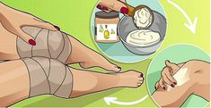 arthritis knee pain remedies, types of remedies and methods to minimize knee pain or treatment towards knee arthritis Fluid On The Knee, 7 Places, Knee Arthritis, Knee Pain, Almost Always, Health Problems, Digestive Problems, Home Remedies, Health Tips