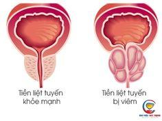 Viêm đường tiết niệu ở nam giới uống thuốc gì? Prostate Cancer Treatment, Prostate Massage, Reiki, Ayurveda, Benign Prostatic Hyperplasia, Routine, Colon Health, Best Doctors, Proper Nutrition