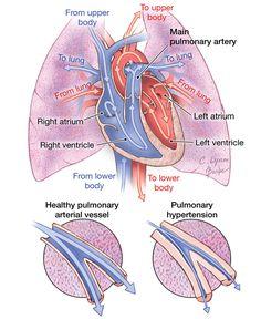 Pulmonary Hypertension 2012-10