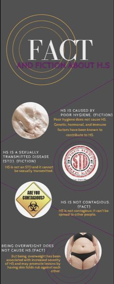 Fact And Fiction About hidradenitis Suppurativa