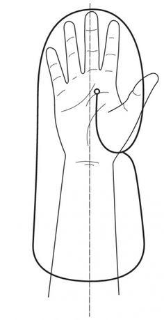 Splinting Guide - 1. Hand Resting Splint   Orfit Industries