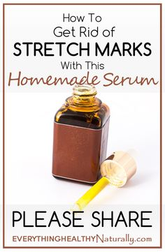 How To Get Rid of Stretch Marks With This Homemade Serum