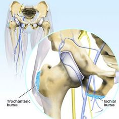 Read about hip bursitis (inflammation of the hip Trochanteric and ischial bursa) symptoms, causes, diagnosis, and treatment (cortisone shots, surgery) of chronic and septic bursitis. Hip bursitis is the cause of hip pain. Hip Anatomy, Muscle Anatomy, Iliotibial Band Syndrome, Bursitis Hip, Causes Of Back Pain, Hamstring Workout, Hip Pain, Medical, Chronic Pain