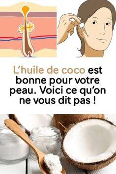 L'huile de coco est bonne pour votre peau. Voici ce qu'on ne vous dit pas ! Hair Health, Diy Beauty, Dit, Health Tips, Natural Beauty, Family Guy, Soap, Wellness, Skin Care
