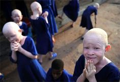 help these albino children & adults get the help they need, and to stop the cruel murders of people affect with albinism in Tanzania.