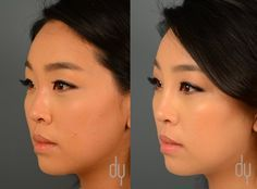 and surgery before after nose Asian