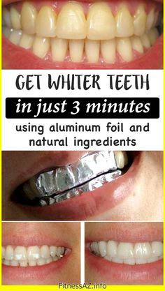 GET WHITER TEETH IN JUST 3 MINUTES USING ALUMINUM FOIL AND NATURAL INGREDIENTS #teeth #white #health #beauty #face